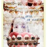 """braces"" by SandraCohen"