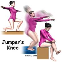 child_knee_jumpers_intro01
