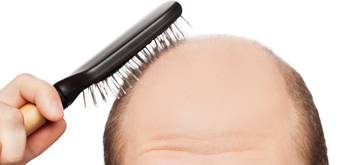 Advantages of FUE hair transplant surgery