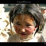 """Tibetan girl with bandaids"" by ExposedPlanet"