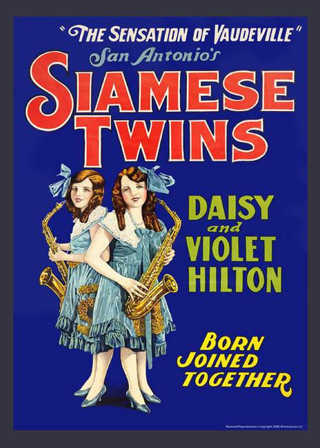 siamese twin dating website