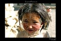 Tibetan girl with bandaids
