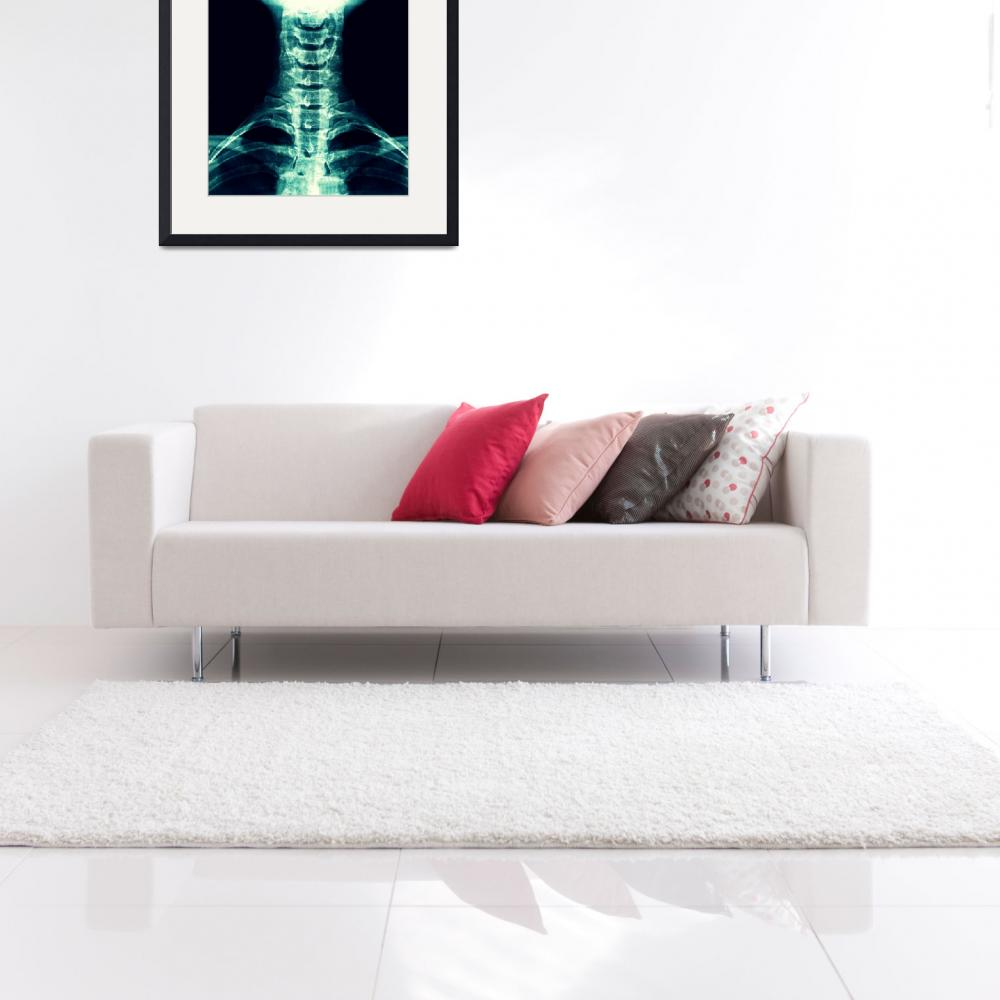 """""""Digital X-Ray Art&quot  by chiropracticbydesign"""