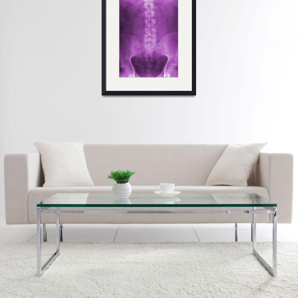 """Purple Digital X-Ray Art&quot  (2008) by chiropracticbydesign"