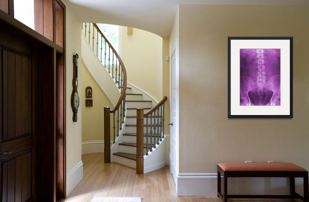 """""""Purple Digital X-Ray Art&quot  (2008) by chiropracticbydesign"""