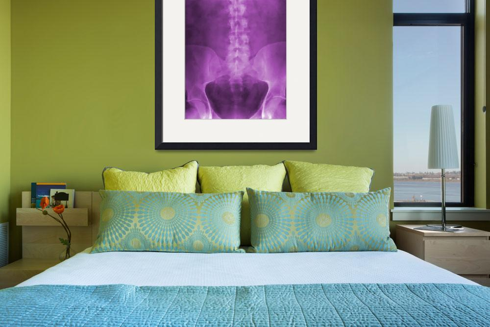 """Purple Digital X-Ray Art""  (2008) by chiropracticbydesign"