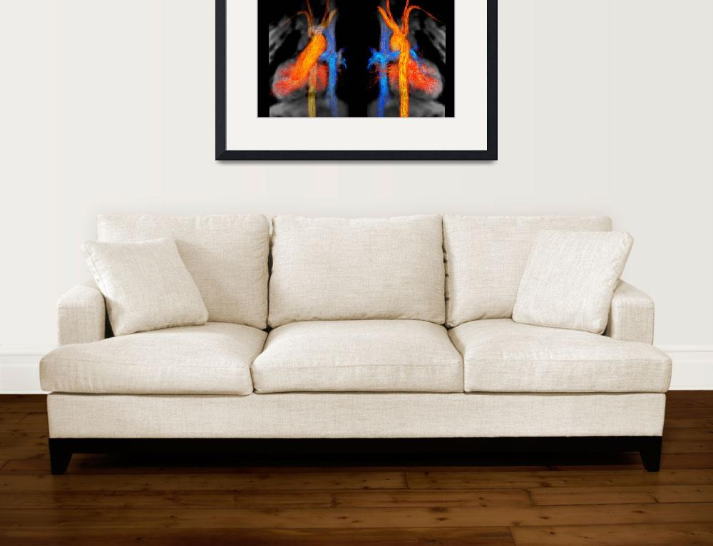 """""""Blood Flow in Fontan Circulation by Kelly Jarvis&quot  by ScienceinSociety"""